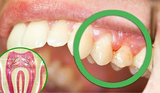 Photo of لماذا تاذي أسنانك