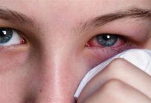 Photo of حساسية العين للضوء تستلزم استشارة الطبيب فوراً