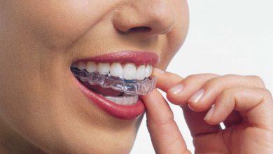 Photo of تقويم الأسنان الشفاف وكيفية العلاج به
