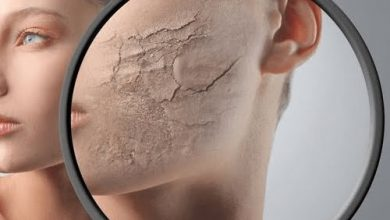 Photo of علاج البشرة الجافة والعناية بها