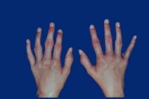 التهاب المفاصل الرثياني (الروماتويد)
