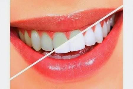 الحل السحرى لمشكلة اصفرار الاسنان