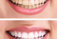 Photo of تبييض و تنظيف الاسنان