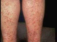 Photo of التهاب الأوعية الدموية , علاجالتهاب الأوعية الدموية