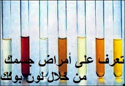 Photo of تعرف على أمراض جسمك بنفسك من خلال لون بولك