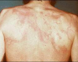 الحمى الروماتيزمية الجلد