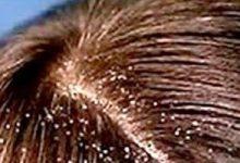 Photo of 4 طرق طبيعية لعلاج قشرة الشعر