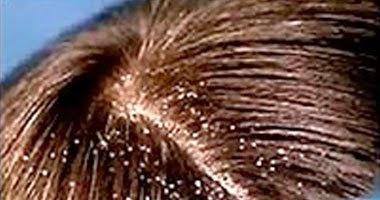 4 طرق علاج قشرة الشعر