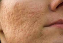 Photo of خلطات طبيعية لعلاج حفر الوجه بشكل فعال