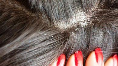 Photo of أفضل 10 مكونات طبيعية لعلاج قشرة الشعر الصعبة