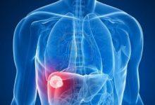 Photo of دراسة هولندية تحذر: الإفراط في أكل اللحوم يعزز الإصابة بأمراض الكبد