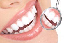 Photo of افضل طريقة لتبييض الاسنان بمكونات طبيعية
