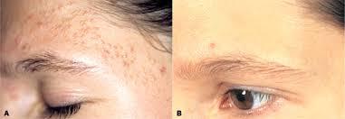 خلطات طبيعية لتخلص من البثور في الوجه