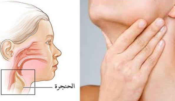 علاج بحة الصوت والتهاب الحلق بالاعشاب