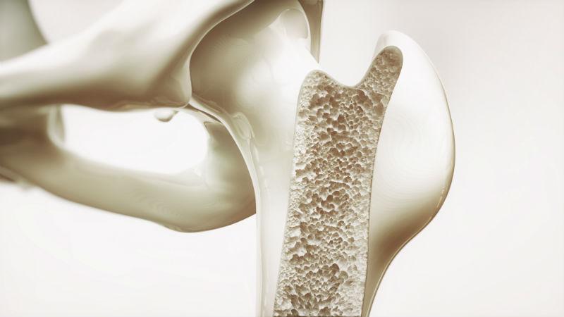 أسهل الطرق للتخلص من هشاشة العظام