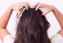 Photo of كيف احصل على فروة راس صحية , التخلص من القشرة , شعر جميل