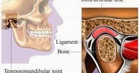صور متلازمة المفصل الفكي الصدغي Temporomandibular joint syndrome