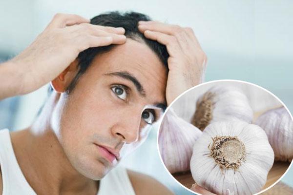 اسباب تساقط الشعر عند الرجال في سن مبكر