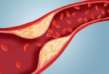 Photo of افضل طرق علاج الكوليسترول المرتفع