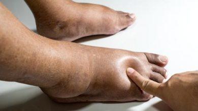 Photo of أعراض الوذمة , أسباب الوذمة وطرق علاجها