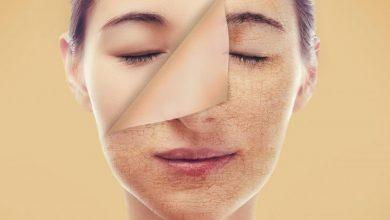 Photo of طرق علاج البشرة الشاحبة , علاج شحوب الوجه