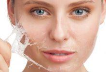 Photo of أسرع علاج لاحمرار الوجه بعد إزالة الشعر