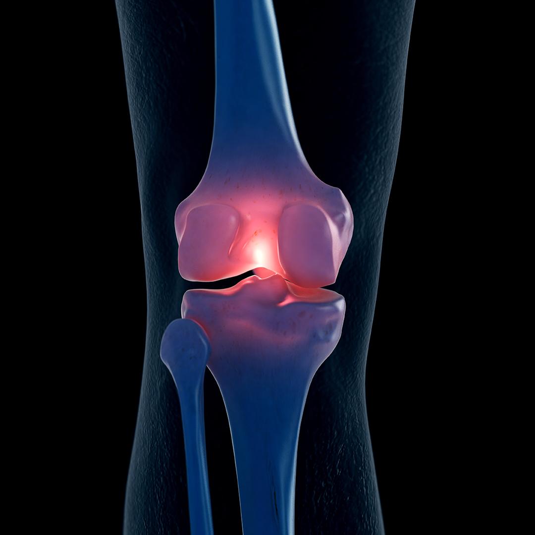 علاج مفصل الركبة