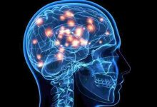 Photo of التهاب الدماغ