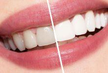 Photo of أفضل أنواع تبيض الأسنان