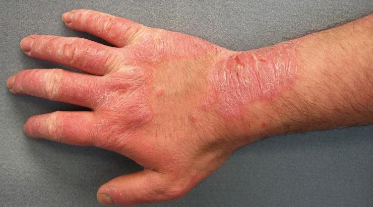 أسباب الحساسيّة الجلدية وعلاجها