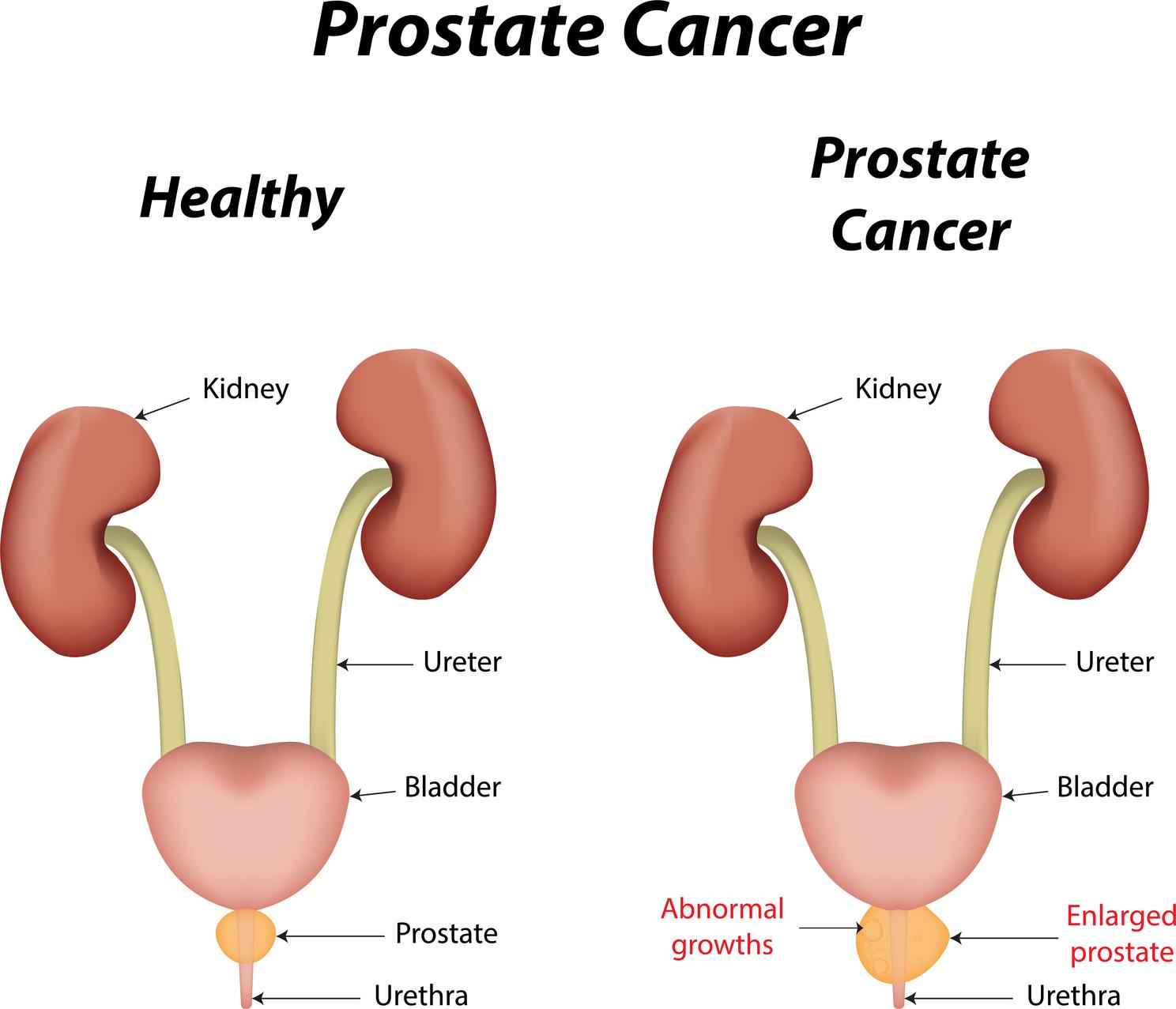 الفرق بين سرطان البروستاتا وتضخم البروستاتا مجلة رجيم
