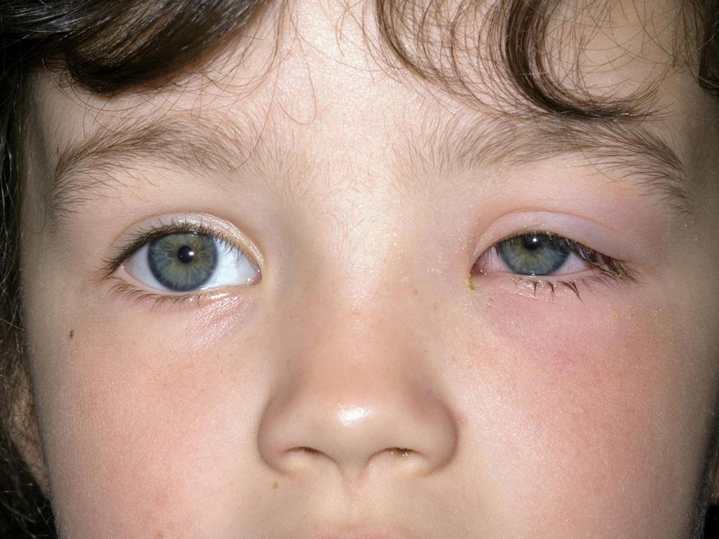 التهاب عين الطفل مجلة رجيم