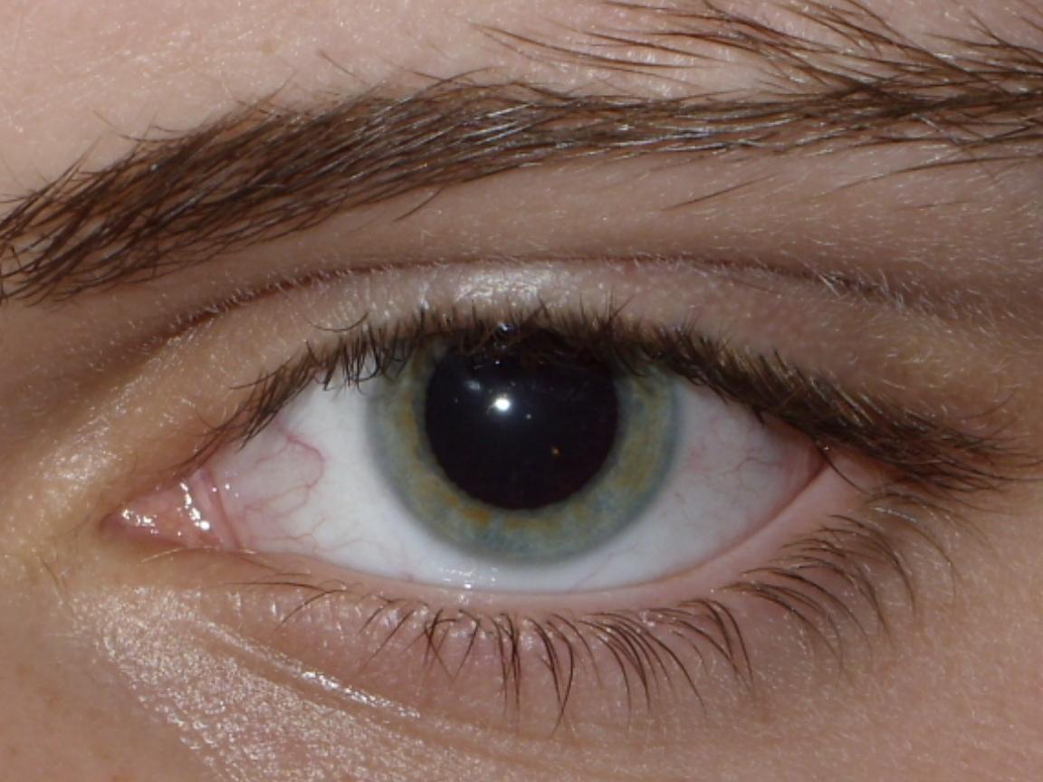 امراض العين الخطيرة