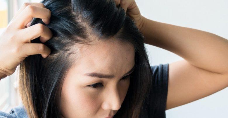 اسباب تساقط الشعر الشديد