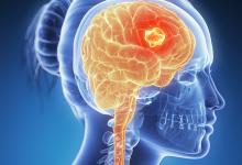 Photo of ماهي أعراض سرطان المخ