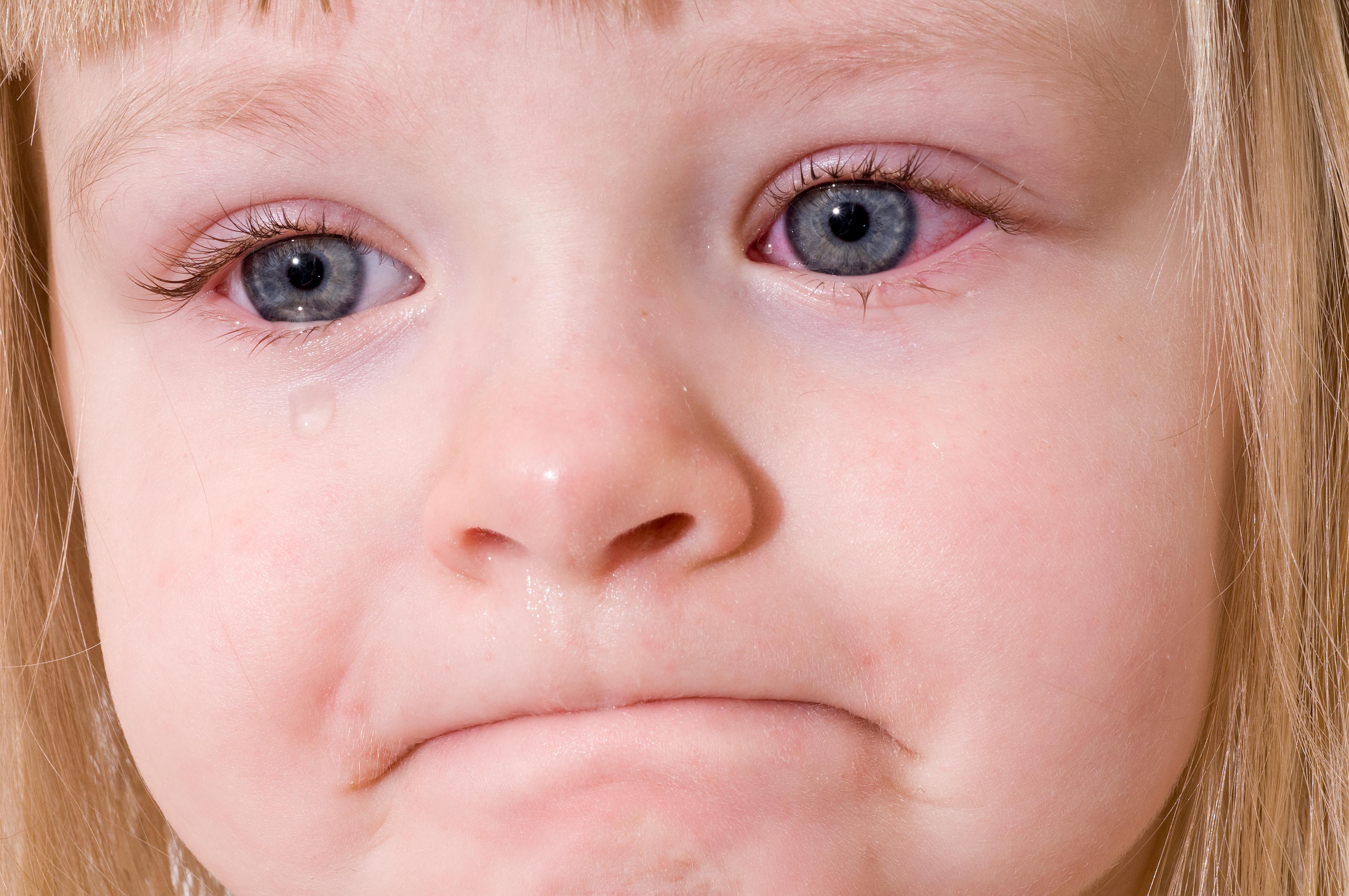 تورم عيون الأطفال