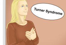 Photo of علاج متلازمة تيرنر