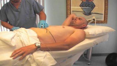 Photo of أضرار شفط الدهون من البطن