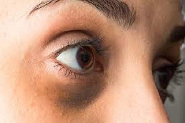 التخلص من السواد تحت العين طبيعيا مجلة رجيم