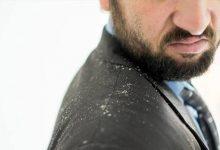 Photo of علاج قشرة الشعر للرجل