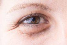 Photo of ما هو علاج السواد تحت العينين