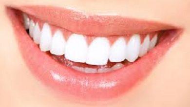 Photo of أضرار جير الأسنان