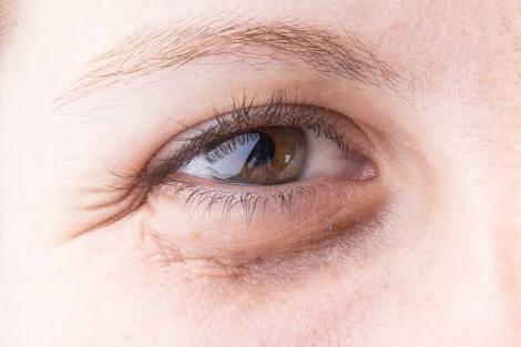 ما هو علاج السواد تحت العينين