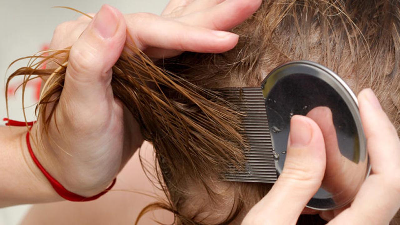 علاج تقصف الشعر من الامام عند الاطفال