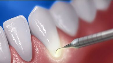 Photo of علاج تسوّس الأسنان باللـّيزر