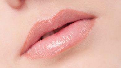 Photo of ما علاج السواد حول الفم