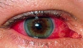 العين الحمراء