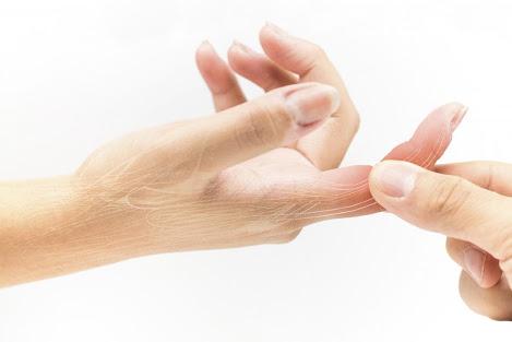 العلاج بالضغط على الأصابع