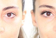 Photo of علاج الانتفاخ تحت العين طبيعيا
