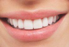 Photo of تعرف على أسباب تسوس الأسنان